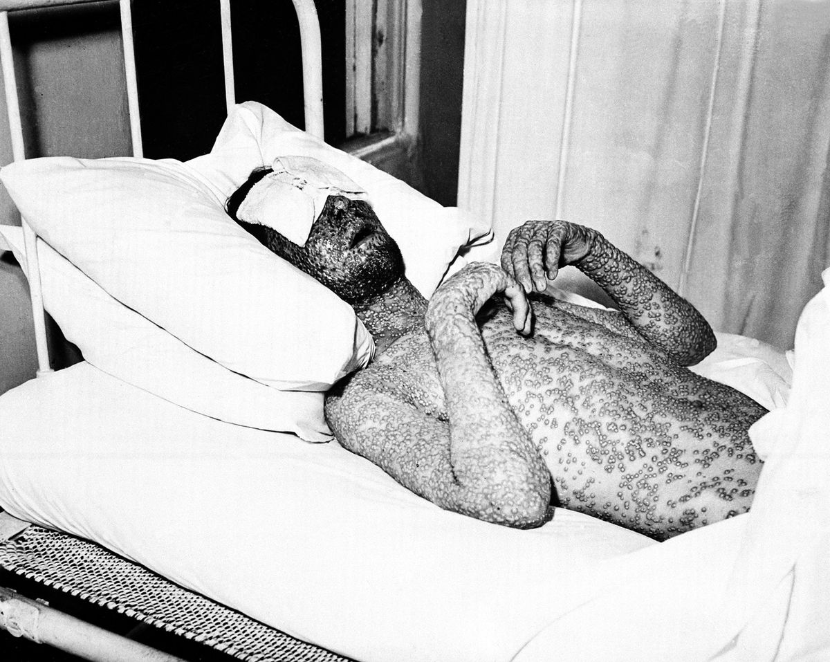 A person covered in pox on a bed.